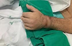 Homem tem mão reimplantada após aprender a preservá-la em séries de TV (Foto:  Divulgação/Hospital Santo Antônio)