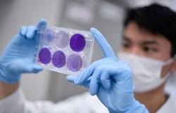 Anvisa autoriza teste de vacina da Covid-19 no DF pela UnB (Foto: Douglas MAGNO / AFP)