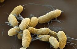 Além da Mongólia, peste bubônica mata 6 no Congo; nos EUA, vítimas são pumas (Foto: Reprodução/Organização Pan-Americana da Saúde)