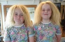 Gêmeas inglesas têm rara síndrome que torna o cabelo impenteável (Foto: Reprodução/Twitter)