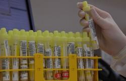 Brasil entra em rede global de produção de vacinas contra Covid-19 (Foto:NELSON ALMEIDA / AFP)
