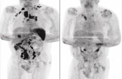 Homem tem redução de câncer em estágio avançado após contrair Covid-19 (Foto: Reprodução)