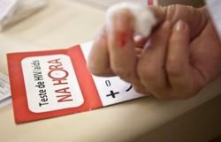 América Latina tem aumento de 20% de novos casos de HIV na última década (Foto: Arquivo/Agência Brasil)