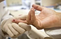 Ato no Rio de Janeiro lembra Dia de Luta contra a Aids e faz testes de HIV (Foto: Divulgação)