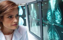 Outubro Rosa: Campanha alerta para importância de diagnóstico precoce (Foto: Divulgação)