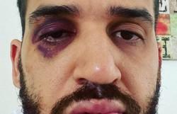 Médico do Paraná é espancado após defender lockdown (Foto: Reprodução/Instagram)