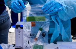 Coronavírus: 500 mil kits de teste rápido chegam ao Brasil (Foto: Arquivo/AFP)