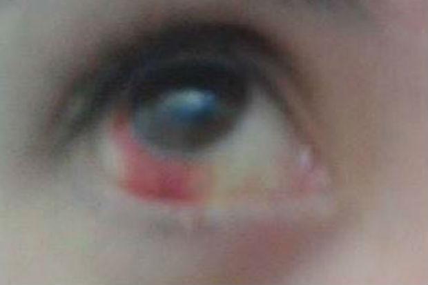 Além do trauma, a universitária ficou com vários hematomas pelo corpo, teve derrame ocular. Foto: Reprodução/ Facebook
