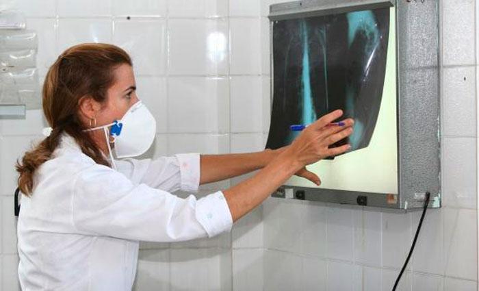 Levantamento destaca a necessidade de os governos aumentarem os esforços de combate à tuberculose que, em 2015, matou 1,8 milhão de pessoas no mundo. Foto: Agecom Bahia