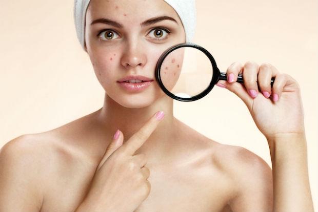 Higienizar a pele antes de dormir pode ajudar na luta contra o aparecimento da acne. Foto: Reprodução/Internet