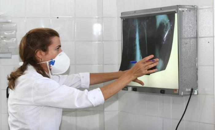 É necessário ficar atento aos sintomas da tuberculose para dar início ao tratamento e, com isso, interromper a contaminação das outras pessoas - Foto: Agecom Bahia