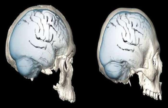 Tomografia do crânio de um homem moderno (direita) e do Homo sapiens há 300 mil anos: mudanças deram vantagens cognitivas (foto: Simon Neubauer, MPI EVA Leipzig/Divulgação)