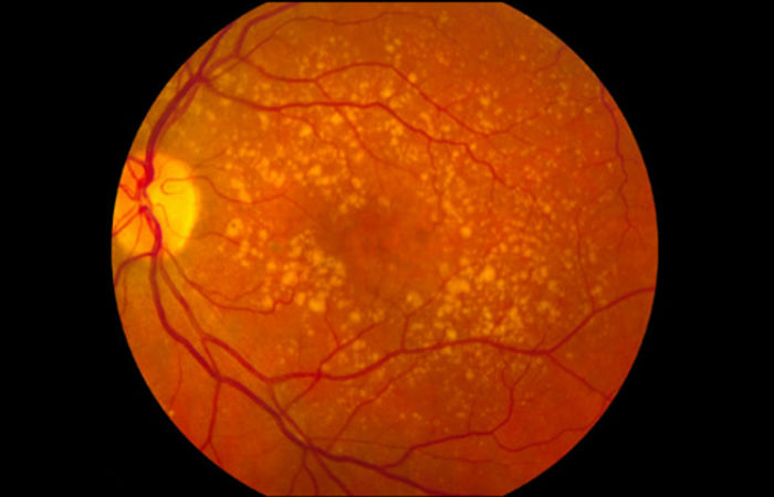 Foto: National Eye Institute of the NIH / Creative Commons