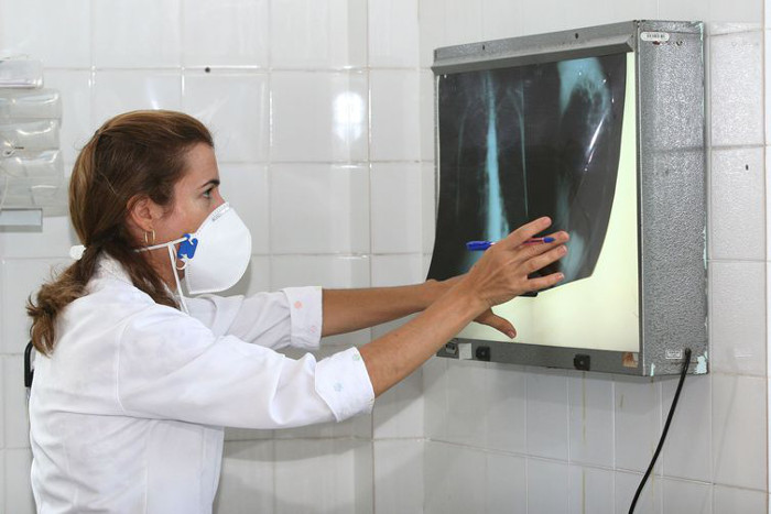 Exames ajudam a identificar a tuberculose  (Arquivo/Agecom Bahia)