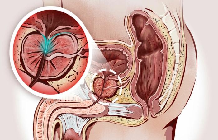 A próstata é uma glândula localizada na frente do reto, abaixo da bexiga, envolvendo a parte superior da uretra - Foto: Reprodução/Shutterstock