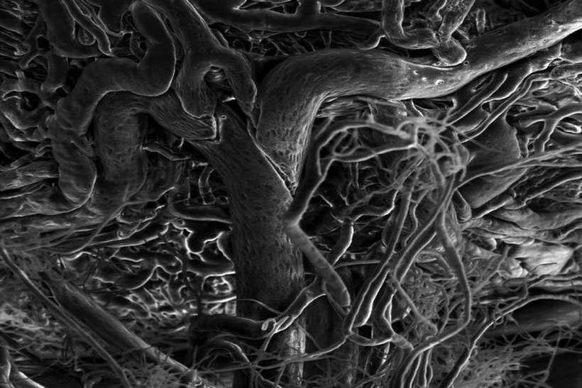 Cateteres com sensores eletromagnéticos captam imagens do interior do corpo humano e as exibem, em tempo real, em um óculos especial. Foto: Przemyslaw Sapieha/Divulgação