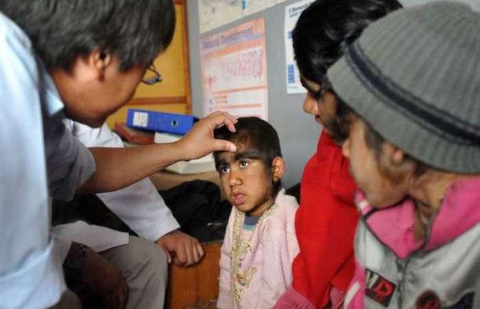 """Em 2012, o caso de uma família que desenvolveu a """"Síndrome do Lobisomem"""" ficou conhecido no mundo. Foto: Prakash Mathema/AFP"""
