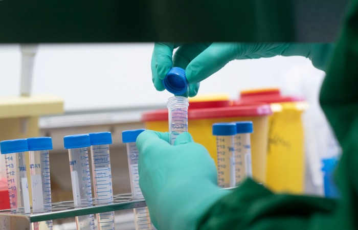 Ao todo, 186 profissionais de saúde foram testados até esta segunda-feira.  (Foto: Thomas Kienzle/AFP )