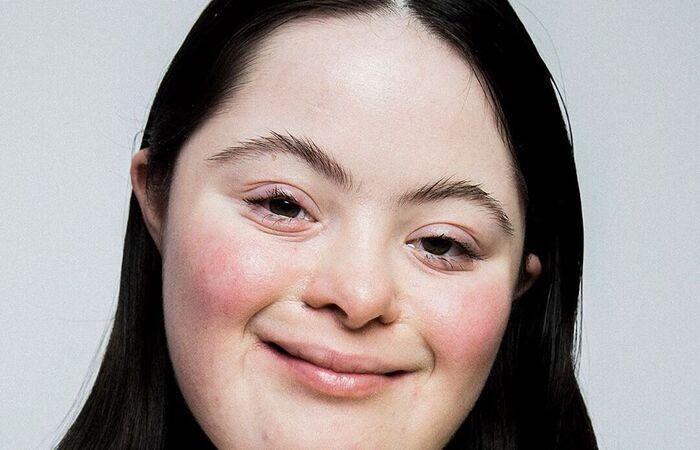 Ellie Goldstein, de 18 anos, já estrelou campanhas para outras marcas (Foto: David PD Hyde/Divulgação )