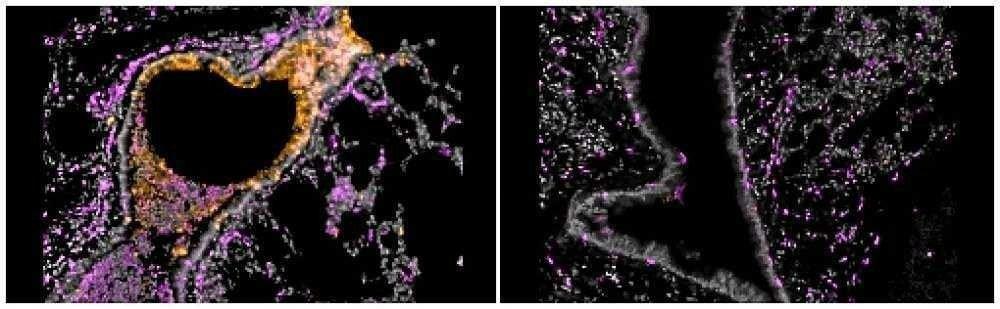 (As células de defesa artificiais reduzem a presença do Sars-CoV-2 no corpo das cobaias em um milhão de vezes. Foto: Nambulli et al./Science Advances)