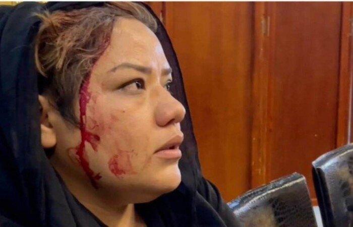 Razia Barak Haidari, 26 anos, foi socada na orelha (Foto: material cedido ao Correio Braziliense )
