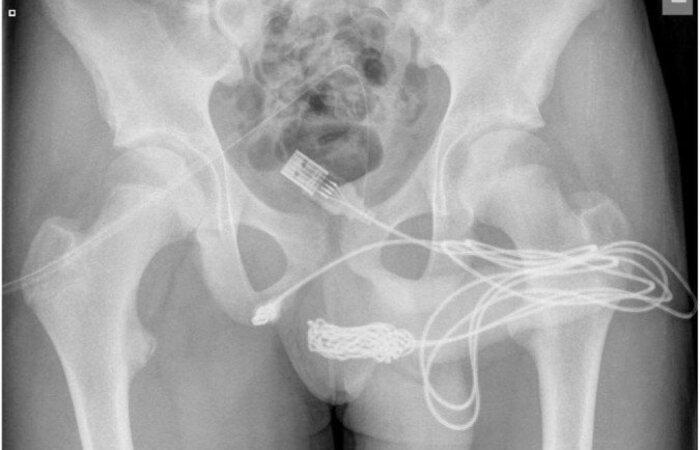 (Foto: Calum Grant/Urology Case Reports)