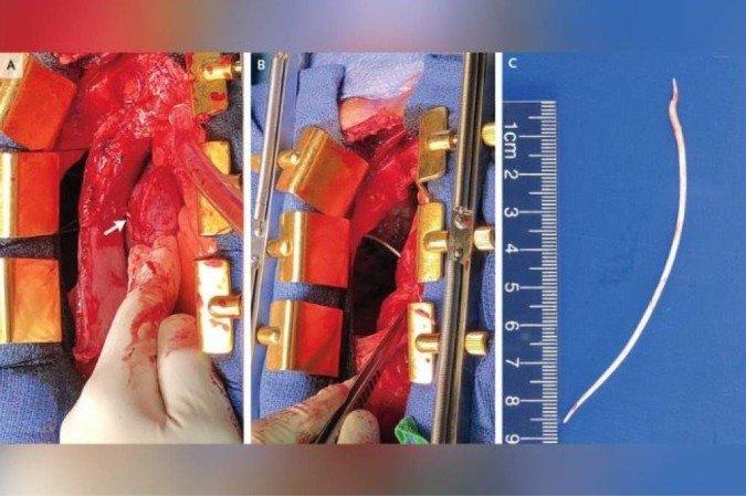 (O objeto tinha 10,1 centímetros de comprimento e já perfurava o coração e o pulmão do paciente, além de obstruir a passagem de sangue nas veias. Foto: The New England Journal of Medicine)
